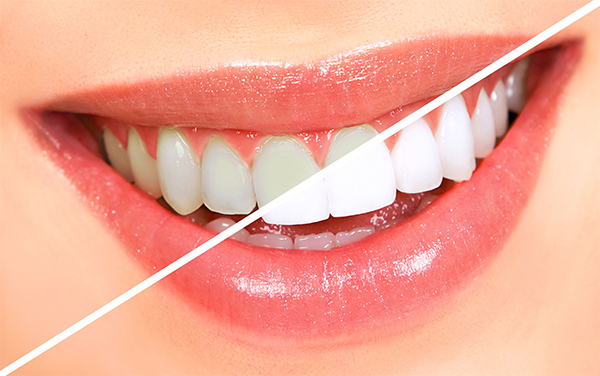 Cách Làmtrắng Răng