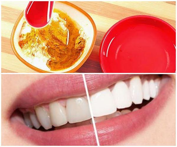cách làm trắng răng bằng muối và tinh nghệ