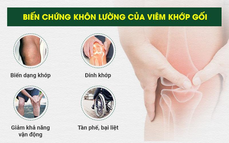 Viêm Khớp Gối: Nguyên nhân, triệu chứng & cách điều trị, giảm đau