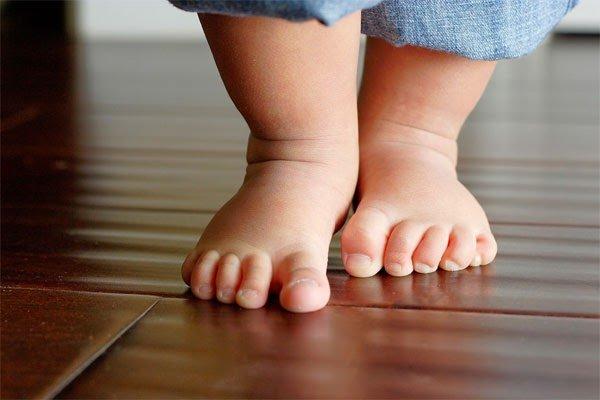 Trẻ thừa cân có khả năng bị chân vòng kiềng
