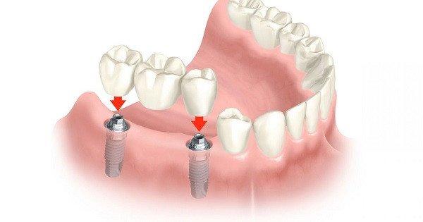 Cay Ghep Implant 1 1