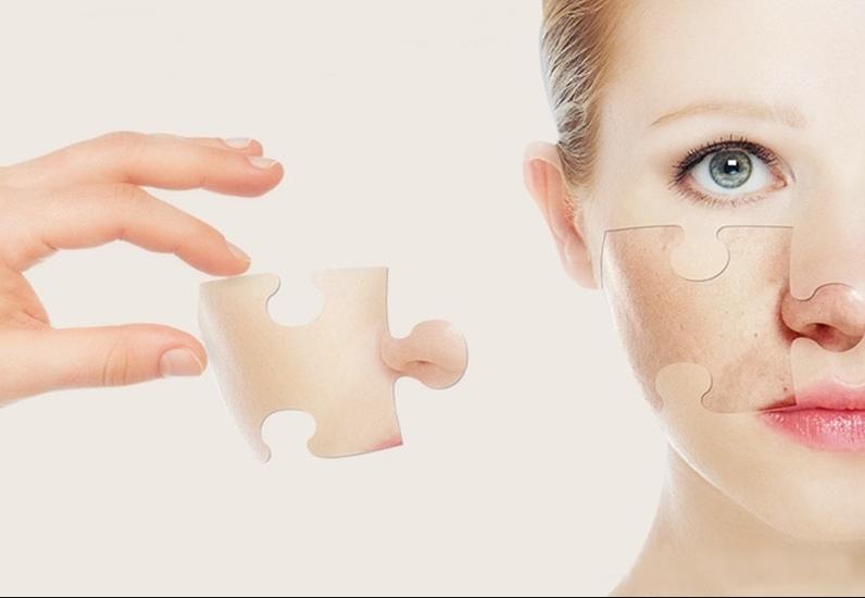 Peel thay da sinh học có thực sự tốt không?