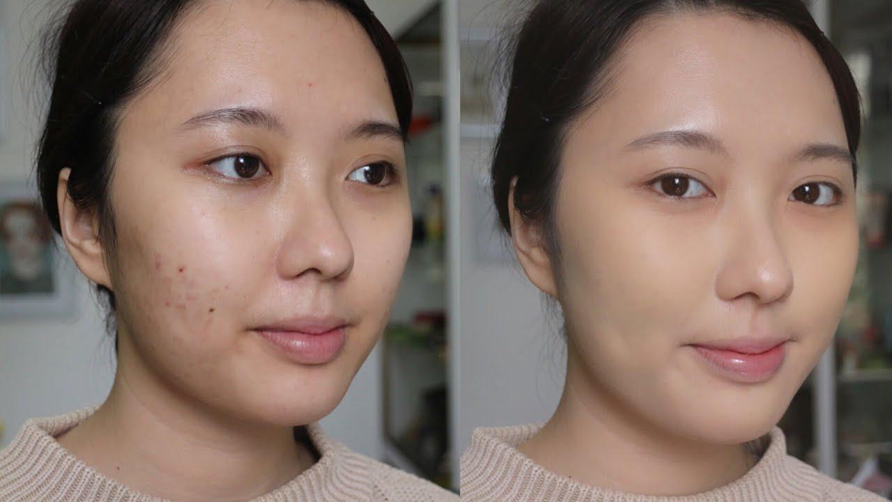 Cách trang điểm che vết sẹo hiệu quả